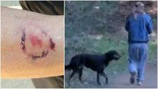 Police Say Woman Was Attacked By Dog, Then Bitten By Dog's Owner