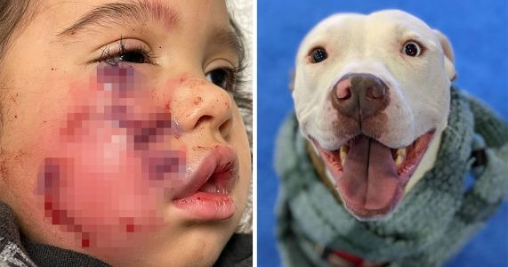 Dog To Be Euthanized After Owner Flees Scene Of Attack On Toddler